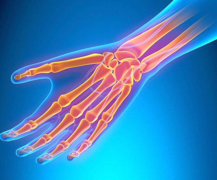 МРТ/КТ кисти и лучезапястного сустава