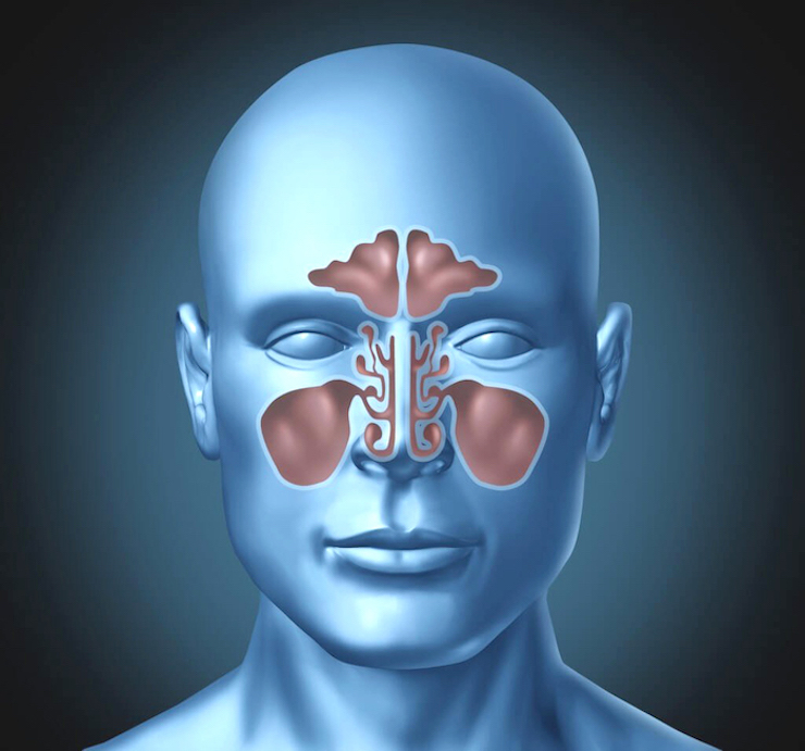 МРТ, КТ придаточных пазух носа